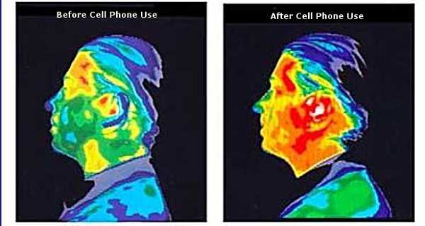 Top 5 PHONES With The Highest Radiation. Is Yours Putting Your BRAIN At Risk?