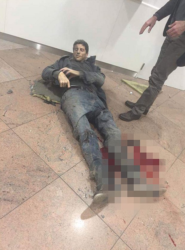 A wounded passenger lies on the floor at Brussels airport