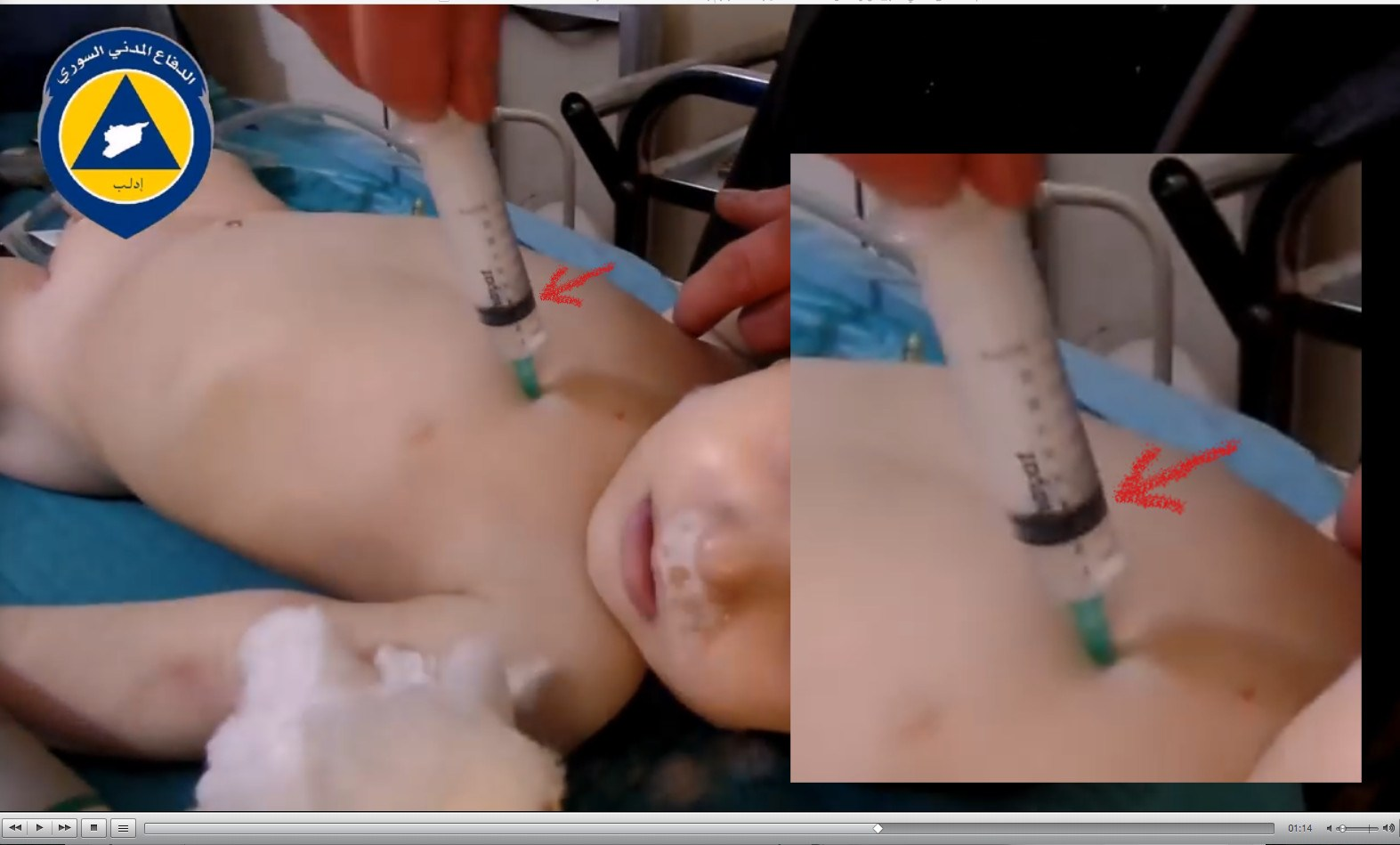 injection-0-2-box