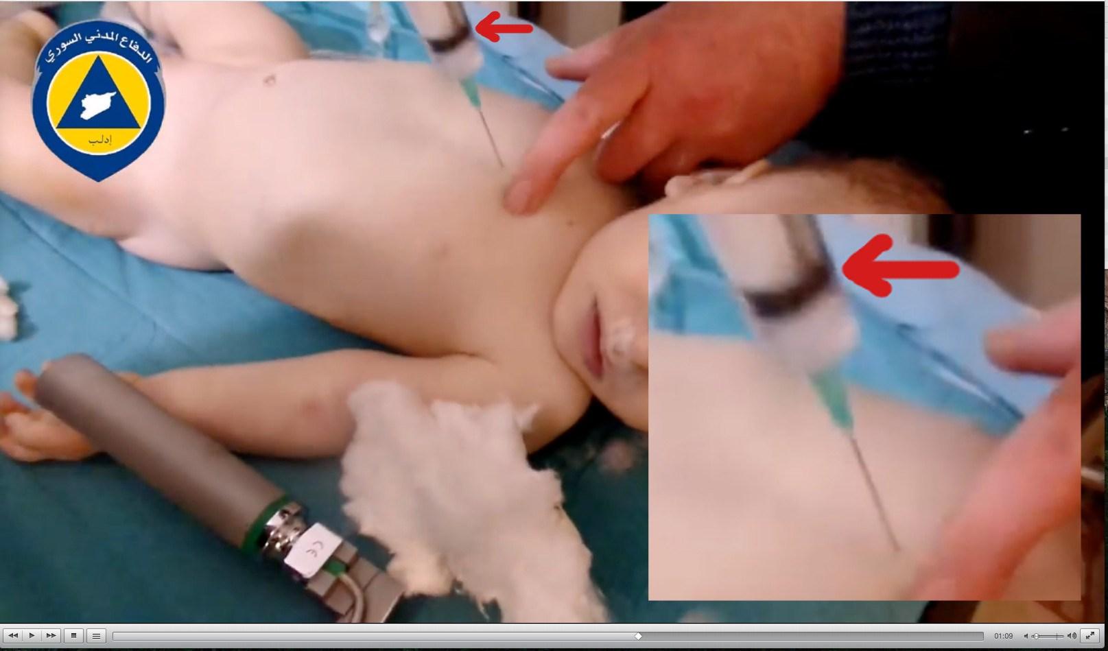 injection-0-box