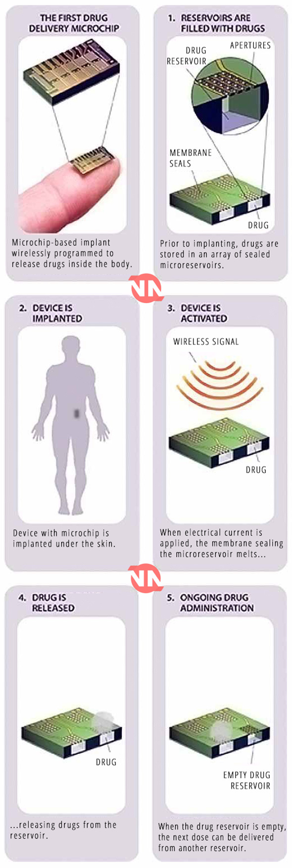 Bill Gates' New Population Control Microchip Due for Launch in 2018 | bill-gates-new-population-control-microchip-due-for-launch-2018-2217717 | Bill Gates Eugenics & Depopulation Medical & Health Multimedia RFID Chips Science & Technology Sleuth Journal